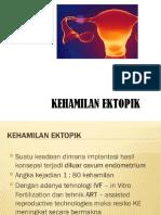 Kehamilan Ektopik (2)