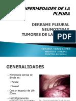 Enfermedad Pleural