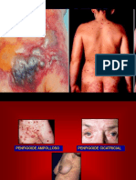 Penfigoides-D. Herpetiforme-