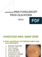 Gambaran Funduskopi Pada Glaukoma