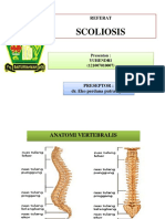 PPT Scoliosis (12-007) FK