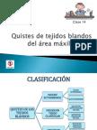 Clase 14 Quistes de Tejido Blando Resumen