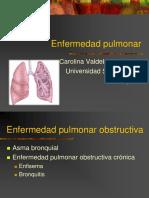 Enfermedad Pulmonar Obstructiva (1)