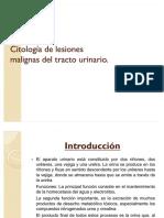 54568696 Citologia de Lesiones Malignas Del Tracto Urinario
