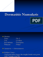Dermatitis Numularis 1