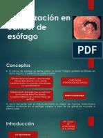 ACTUALIZACION DE CA DE ESOFADO.pptx