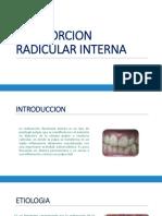Reabsorcion Radicular Interna