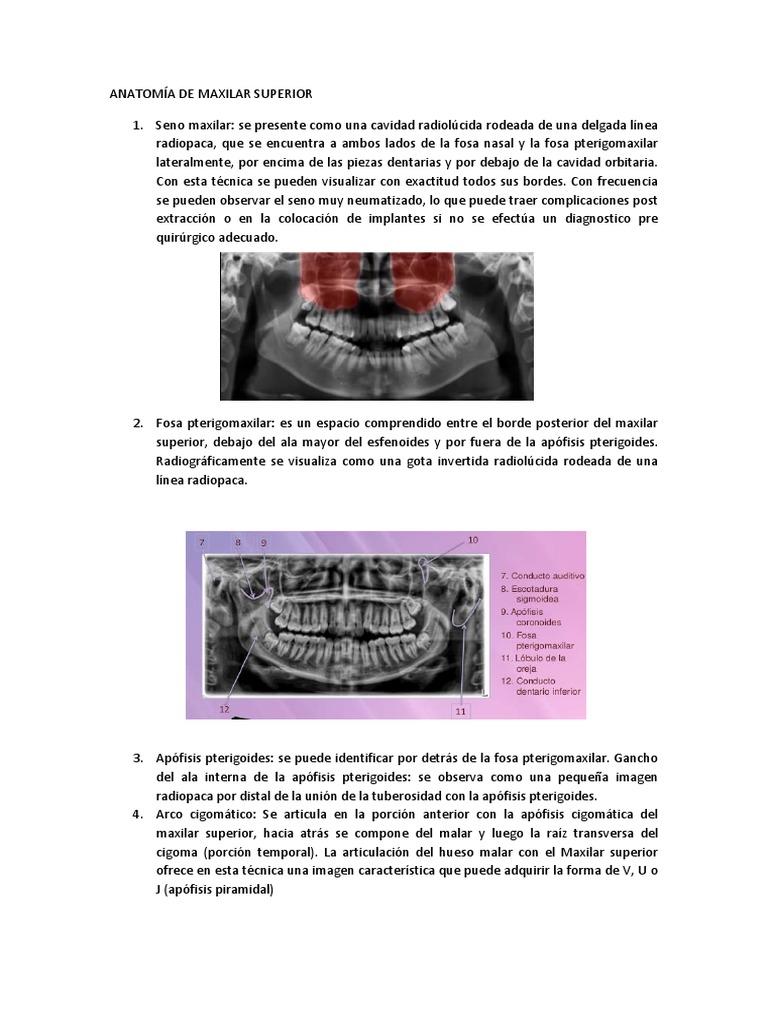 Anatomía de Maxilar Superior