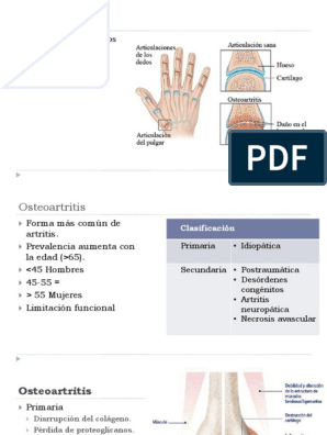 manos de osteoartritis inducida por diabetes