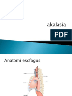akalasia.pptx
