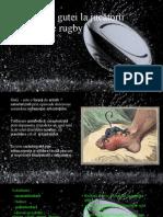 Tratamentul Gutei La Jucatorii de Rugby