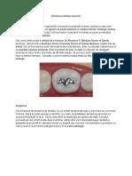 fracturi dentare