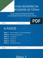 6 Pasos Para Interpretar Una Radiografia de Torax