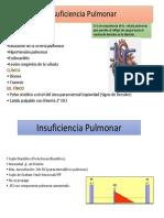 Soplo en La Insuficiencia Pulmonar