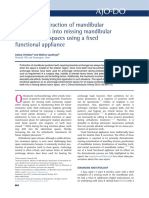 En-masse Protraction of Mandibular Posterior Teeth Into Missing Mandibular Lateral Incisor Spaces Using a Fixed Functional Appliance