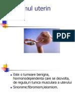Miomul-uterin