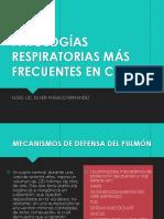 Enfermedades Respiratorias en Chile