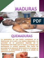QUEMADURAS2.ppt