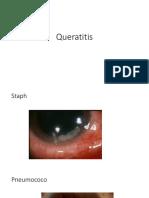 Queratitis.pptx