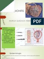 corioaminitis 14.pptx