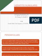 FIX Keratitis numularis.ppt
