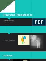 Fracturas Trocantéricas