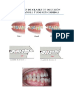 Analisis de Oclusion Dental