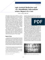Endoscopic-Assisted Reduction and Fixation of a Mandibular Subcondylar Fracture Report of a Case