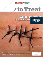 Treating Wound Infections