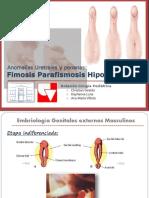 hipospadia-160507221637