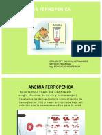 4. Anemia Ferropénica
