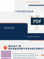 Rhabdomyosarcoma