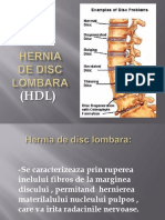 99518379-Hernia-de-Disc-Lombara.pdf