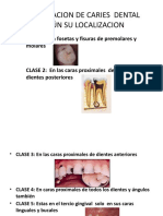 Clasificacion de Caries Dental