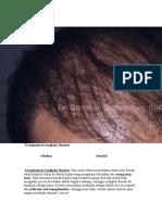Transplantasi rambut1