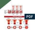 Cervical CA Images