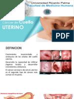Cancer de Cuello Uterino Patologia Especial