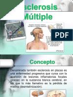A. Esclerosis Multiple