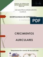Morfologias de Hipertrofia (1)