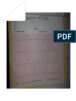 EKG.doc