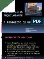 espondilitis_anquilosante1
