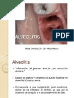 alveolitis-130527180045-phpapp02