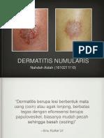 Dermatitis Numularis11