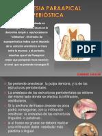 8. Cirugia Jeannine Salazar2