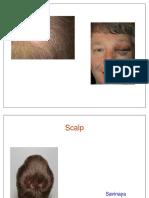 14 - Scalp (FF)