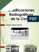 Clasificacion Radiografica de Las Caries 15-06-2016