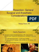 Gastric Resection