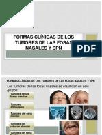 Formas Clínicas de Los Tumores de Las Fosas.- Cinthya Ramirez