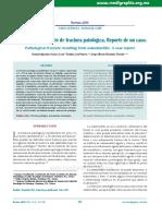 Osteomielitis Fractura Patologica