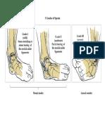 3 Grades of Sprain